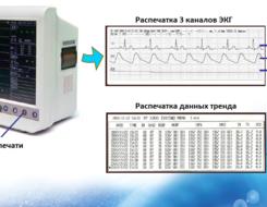 Трехканальный термопринтер